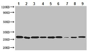 Western blot - Anti-Peroxiredoxin 3/PRDX3 antibody (ab222807)