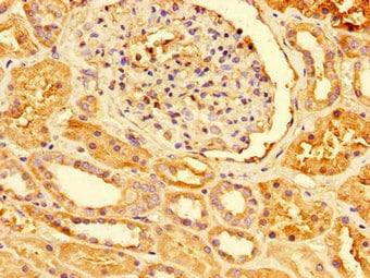 Immunohistochemistry (Formalin/PFA-fixed paraffin-embedded sections) - Anti-Peroxiredoxin 3/PRDX3 antibody (ab222807)