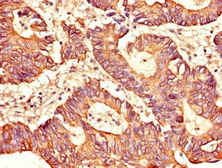 Immunohistochemistry (Formalin/PFA-fixed paraffin-embedded sections) - Anti-SH2D1B antibody (ab222814)