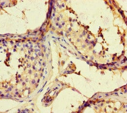 Immunohistochemistry (Formalin/PFA-fixed paraffin-embedded sections) - Anti-ARHGAP42 antibody (ab222815)