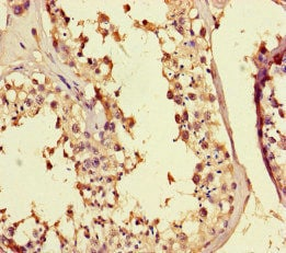 Immunohistochemistry (Formalin/PFA-fixed paraffin-embedded sections) - Anti-MED25 antibody (ab222816)