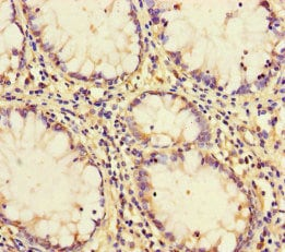 Immunohistochemistry (Formalin/PFA-fixed paraffin-embedded sections) - Anti-PCF11 antibody (ab222819)