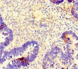 Immunohistochemistry (Formalin/PFA-fixed paraffin-embedded sections) - Anti-beta IV Tubulin antibody (ab222822)
