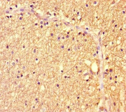 Immunohistochemistry (Formalin/PFA-fixed paraffin-embedded sections) - Anti-ZBTB46 antibody (ab222830)