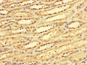 Immunohistochemistry (Formalin/PFA-fixed paraffin-embedded sections) - Anti-DACH1 antibody (ab222832)