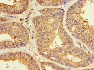 Immunohistochemistry (Formalin/PFA-fixed paraffin-embedded sections) - Anti-ZNF2 antibody (ab222833)