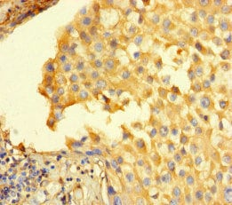 Immunohistochemistry (Formalin/PFA-fixed paraffin-embedded sections) - Anti-STIL/SIL antibody (ab222838)