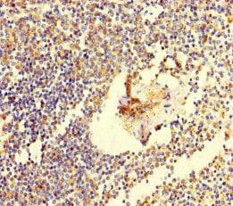 Immunohistochemistry (Formalin/PFA-fixed paraffin-embedded sections) - Anti-C6ORF10 antibody (ab222839)