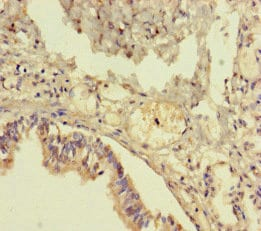 Immunohistochemistry (Formalin/PFA-fixed paraffin-embedded sections) - Anti-TMM64 antibody (ab222842)