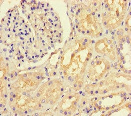 Immunohistochemistry (Formalin/PFA-fixed paraffin-embedded sections) - Anti-LTBP4 antibody (ab222844)