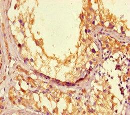 Immunohistochemistry (Formalin/PFA-fixed paraffin-embedded sections) - Anti-LPAL2 antibody (ab222848)