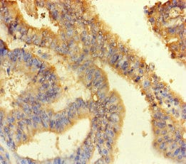 Immunohistochemistry (Formalin/PFA-fixed paraffin-embedded sections) - Anti-ANKS6 antibody (ab222851)