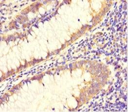 Immunohistochemistry (Formalin/PFA-fixed paraffin-embedded sections) - Anti-DAAM2 antibody (ab222853)