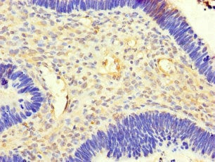 Immunohistochemistry (Formalin/PFA-fixed paraffin-embedded sections) - Anti-ACSF3 antibody (ab222858)