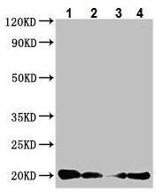 Western blot - Anti-Calcitonin antibody (ab222883)