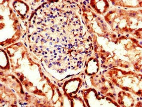 Immunohistochemistry (Formalin/PFA-fixed paraffin-embedded sections) - Anti-EHD2 antibody (ab222888)