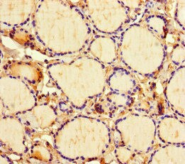 Immunohistochemistry (Formalin/PFA-fixed paraffin-embedded sections) - Anti-ICE1 antibody (ab222889)