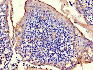 Immunohistochemistry (Formalin/PFA-fixed paraffin-embedded sections) - Anti-RAD54B antibody (ab222891)