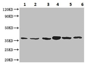 Western blot - Anti-MT-ND1 antibody (ab222892)