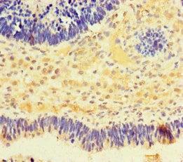 Immunohistochemistry (Formalin/PFA-fixed paraffin-embedded sections) - Anti-NMNAT2 antibody (ab222893)