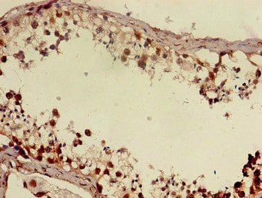 Immunohistochemistry (Formalin/PFA-fixed paraffin-embedded sections) - Anti-DMRT1 antibody (ab222895)