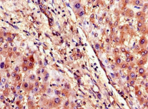 Immunohistochemistry (Formalin/PFA-fixed paraffin-embedded sections) - Anti-SLCO1B3/OATP1B3 antibody (ab222900)