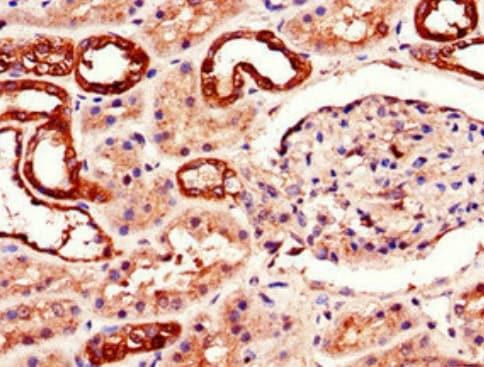 Immunohistochemistry (Formalin/PFA-fixed paraffin-embedded sections) - Anti-Adenosine A2b Receptor/ADORA2B antibody (ab222901)