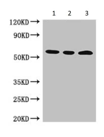 Western blot - Anti-MDMX/MDM4 antibody (ab222905)
