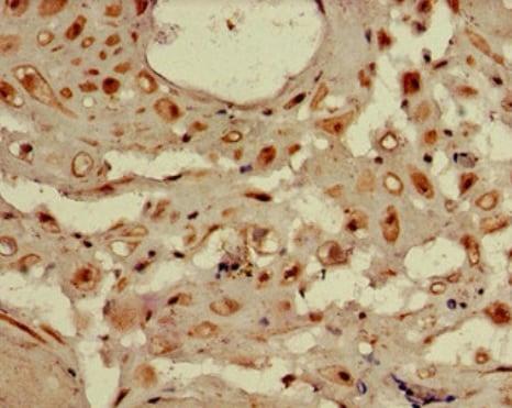 Immunohistochemistry (Formalin/PFA-fixed paraffin-embedded sections) - Anti-WDR19 antibody (ab222908)