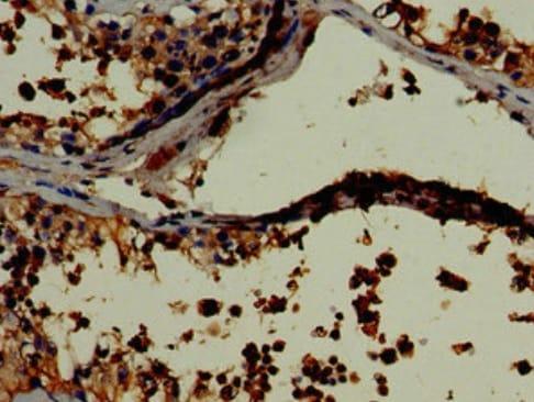 Immunohistochemistry (Formalin/PFA-fixed paraffin-embedded sections) - Anti-LDH-C antibody (ab222910)