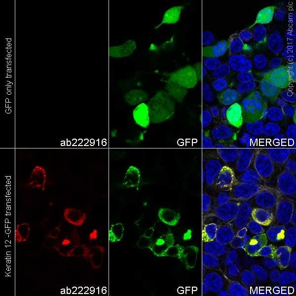 Immunocytochemistry/ Immunofluorescence - Anti-Keratin 12/K12 antibody [EPR17882] (Alexa Fluor® 555) (ab222916)