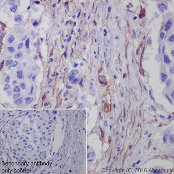 Immunohistochemistry (Formalin/PFA-fixed paraffin-embedded sections) - Anti-Fibroblast activation protein, alpha antibody [EPR20021] - Low endotoxin, Azide free (ab222924)