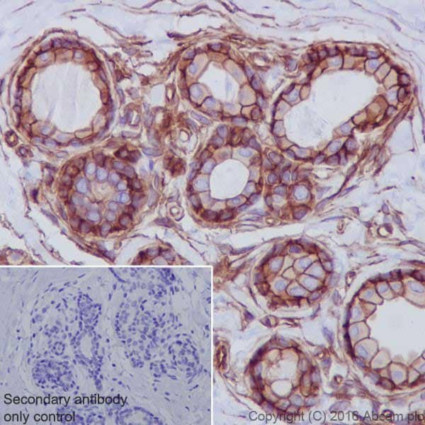 Immunohistochemistry (Formalin/PFA-fixed paraffin-embedded sections) - Anti-Met (c-Met) antibody [EPR19067] - Low endotoxin, Azide free (ab222925)