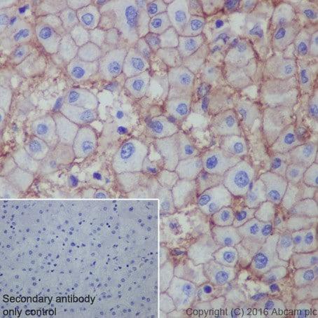 Immunohistochemistry (Formalin/PFA-fixed paraffin-embedded sections) - Anti-Scavenging Receptor SR-BI antibody [EPR20190] - Low endotoxin, Azide free (ab222931)