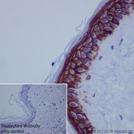 Immunohistochemistry (Formalin/PFA-fixed paraffin-embedded sections) - Anti-TROP2 antibody [EPR20043] - Low endotoxin, Azide free (ab222935)