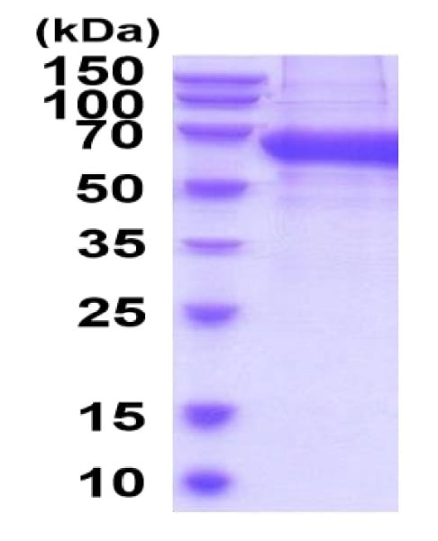 SDS-PAGE - Recombinant Mouse NCR1 protein (His tag) (ab222960)