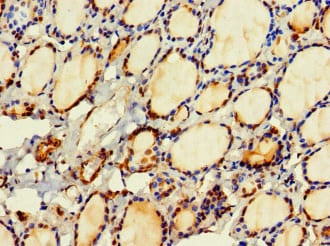 Immunohistochemistry (Formalin/PFA-fixed paraffin-embedded sections) - Anti-HDHD2 antibody (ab222970)