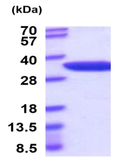 SDS-PAGE - Recombinant Mouse Nmnat1/NMNAT protein (His tag) (ab222977)