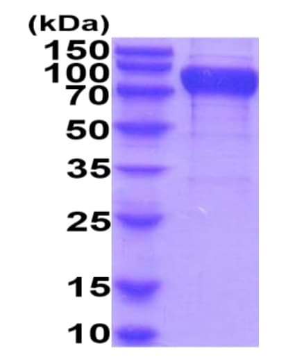 SDS-PAGE - Recombinant Human CD96 protein (His tag) (ab222978)