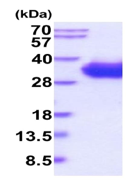 SDS-PAGE - Recombinant Human CD2 protein (His tag) (ab223007)