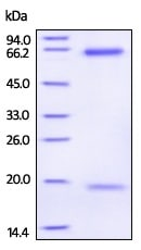 SDS-PAGE - Recombinant Human PCSK9 (mutated R194) protein (Active) (ab223015)