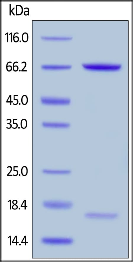 SDS-PAGE - Recombinant human PCSK9 (mutated R194A) protein (Active) (ab223015)