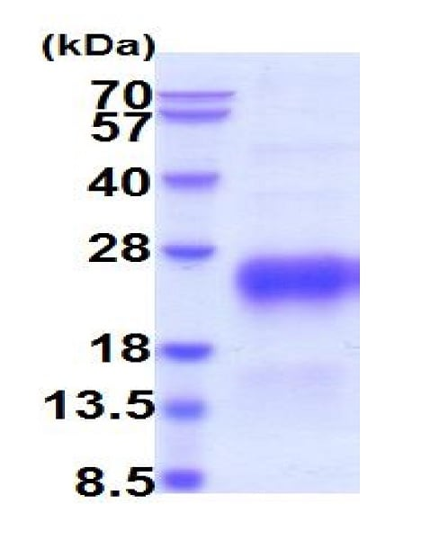 SDS-PAGE - Recombinant Human hCG beta protein (His tag) (ab223019)