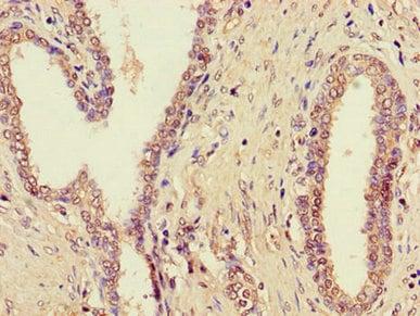 Immunohistochemistry (Formalin/PFA-fixed paraffin-embedded sections) - Anti-ZDHHC1 antibody (ab223042)