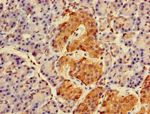 Immunohistochemistry (Formalin/PFA-fixed paraffin-embedded sections) - Anti-RAB27A antibody (ab223044)