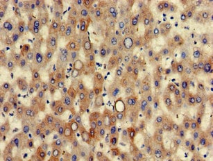 Immunohistochemistry (Formalin/PFA-fixed paraffin-embedded sections) - Anti-Cytokeratin 7 antibody (ab223051)