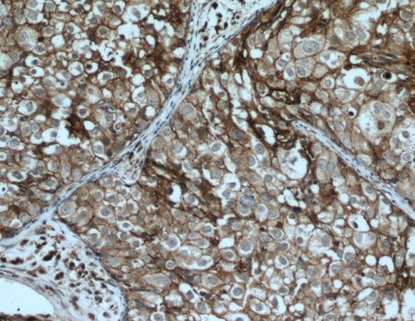 Immunohistochemistry (Formalin/PFA-fixed paraffin-embedded sections) - Anti-CD9 antibody (ab223052)