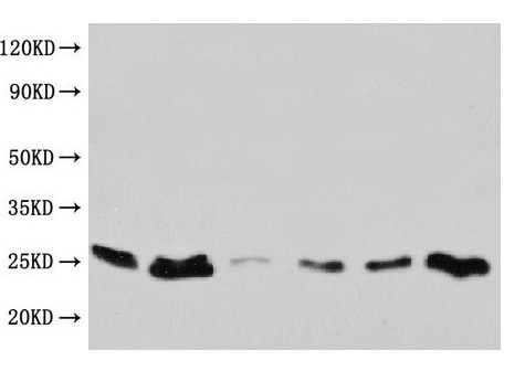 Western blot - Anti-CD9 antibody (ab223052)