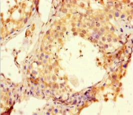 Immunohistochemistry (Formalin/PFA-fixed paraffin-embedded sections) - Anti-BTNL2 antibody (ab223053)