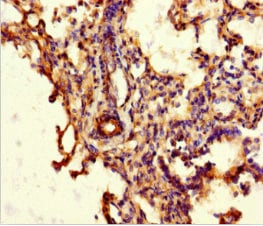 Immunohistochemistry (Formalin/PFA-fixed paraffin-embedded sections) - Anti-ABCG8 antibody (ab223056)